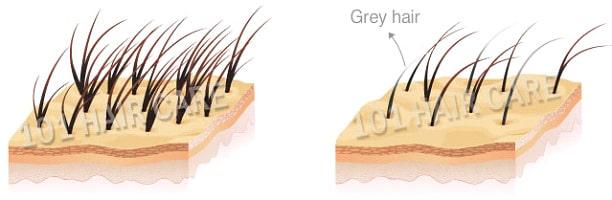 grey-hair-1-min