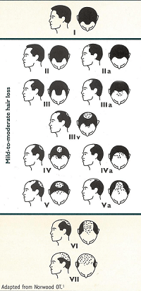 man-pattern-hair-loss-min