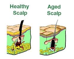 scalp-aging-min