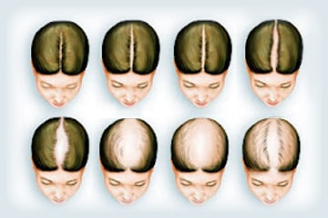 Female-Pattern-Hair-Loss1-min